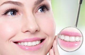 1.Baltų, sveikų gražių dantų šypsena – tai kelias į sėkmę