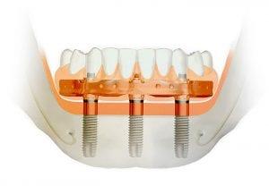 """2017 m. spalio mėn. suteikta teisė 50-čiai pirmųjų pasaulio odontologų, jų t. ir """"Angitia"""" vadovui Mindaugui Gaučiui, dirbti su patentuota naujove – visas nuolatinių dantų lankas ant 3-jų implantų per 6-8 val."""
