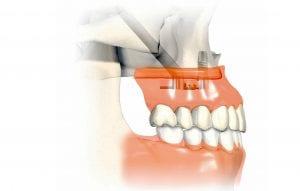 """Ilgieji dantų implantai, pakeitę kaulo priauginimo operaciją ir sutrumpinę procedūrą nuo kelių mėn. iki kelių val. , klinikoje """"Angitia"""" pradėtinaudoti viena pirmųjų Pabaltijyje"""