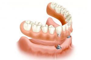 Tradicinė nuimama dantų plokštelė ant dantų implantų – patogus ir nebrangus sprendimas vietoje kitų implantavimo būdų.