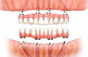 """""""Visi ant 4"""" –viso bedančio žandikaulio dantų implantavimo ant 4 implantų originalia švediška sistema"""