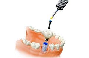 """Klinika """"Angitia""""  atkuria dantis ypatingai aukštos kokybės švediškais dantų implantais ir jų vainikėliais, žinomais visame pasaulyje"""
