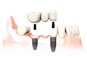 Implantai sriegiami nebūtinai po kiekvienu dantimi