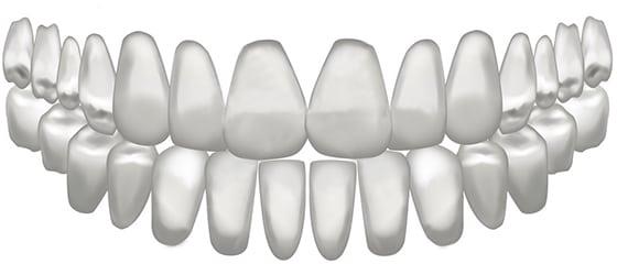 dantų pasirinkimas