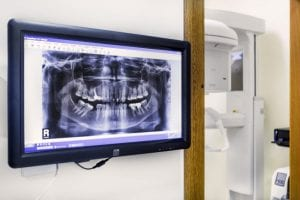 rentgenas-600x400