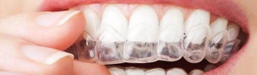 Skaidrios dantų kapos – nepastebimas dantų tiesinimas