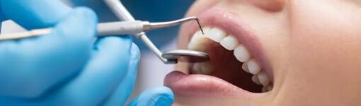 Vis stiprėjanti konkurencija tarp odontologų gerina paslaugų kokybę