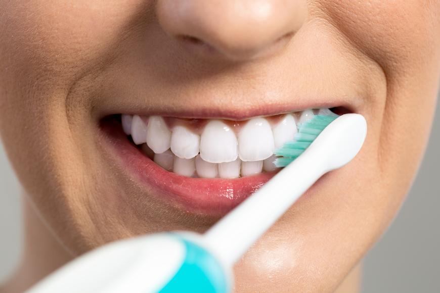 10 patarimų, kaip išlaikyti savo dantis sveikus